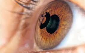 2368a6b5b Tratamento mais moderno, permite óptima qualidade visual para longe e  perto, a maior parte do tempo, sem o uso de óculos.